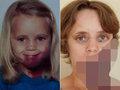 【閲覧注意】顔にアザがあった少女、30年後に大変なことに…! 「紫の人食い」と呼ばれても前向きに生きる姿に感動!