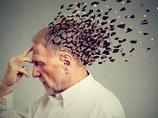【悲報】運動は認知症・アルツハイマー病を悪化させることが判明! 常識を覆す結果に医師絶望「運動能力以外なにも改善しない」=英