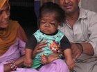 赤ん坊の身体に閉じ込められた23歳の男 ― 身長46センチ、体重5キロ…奇病「ラロン症候群」か!?