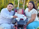 """【閲覧注意】頭に""""王冠""""が埋め込まれた顔面奇形の赤ん坊! 誕生前から医師に見放され… 奇形児の出産責任が議論=ベネズエラ"""