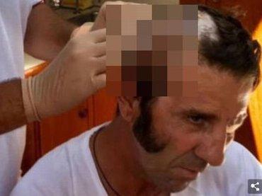 """【閲覧注意】スペイン闘牛界のスーパースター、牛の攻撃をモロに受けて頭皮がズル剥け! """"頭蓋骨が丸出し""""になる戦慄の瞬間がヤバすぎる"""