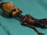 """「宇宙人のミイラ」アタカマエイリアンのDNA鑑定に""""反倫理的""""と専門家! まさかの正体も判明か!?"""