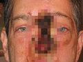 【閲覧注意】顔にブラックホールができた男の過酷な人生! 6年かけてゆっくり顔面崩壊…再起のため困難に立ち向かう!