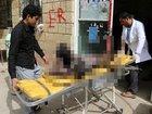 【閲覧注意】少年少女が乗ったバスにミサイル直撃、29人死亡の地獄絵図! 泥沼化する内戦、サマーキャンプ帰路の惨劇=イエメン