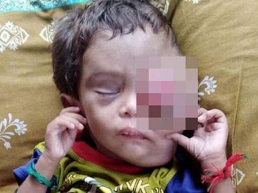 """【閲覧注意】がんで目玉が""""完全に飛び出た""""2歳男児の苦悶の涙…! 治療費捻出できない両親は路上生活に=パキスタン"""
