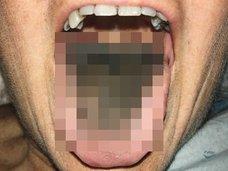 """【閲覧注意】舌から""""真っ黒な髪の毛""""が生えた女"""
