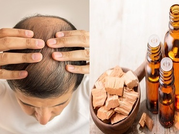 【速報】髪の毛にも「嗅覚」があることが新判明! アノ匂いを髪に嗅がせてハゲ改善できることも!(最新研究)