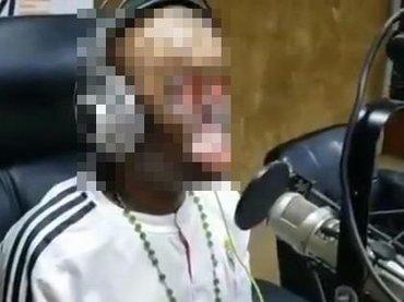 【閲覧注意】完全に顔面を失った男が絶望的苦しみをラジオで激白! 号泣するも涙さえ出ず、電線に感電して目や鼻も溶け…