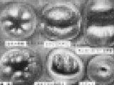 【閲覧注意】第二の処女膜「子宮口の処女」を奪う…はありえるのか亜留間次郎が医学的に解説! チ○コ、乾燥昆布、大量タンポン…