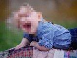 """【閲覧注意】頭が皮膚だけ「頭蓋骨のない赤ん坊」― 奇形""""アカルバリア""""の男児が医師の予想を覆し、力強く生きる"""