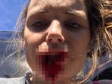 【閲覧注意】彼氏に「唇を完全に食いちぎられた」18歳美女が悲惨すぎる! 300針縫う大惨事に… DV男「自分の印をつけたかった」