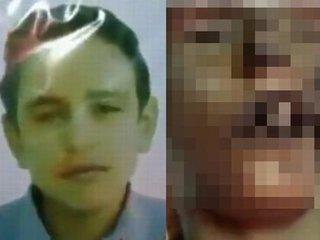 """【閲覧注意】アサド政権が15歳中学生を拷問、死体が痛ましすぎて絶句! 頬に穴、体を棒が貫通… 許せぬ""""身体破壊拷問""""=シリア"""