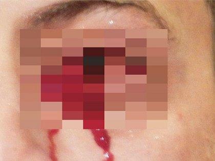 【奇病】ヘモラクリア ― 1時間以上「血の涙」を流し続けた男の謎、鼻をつまむと耳から血が出ることも