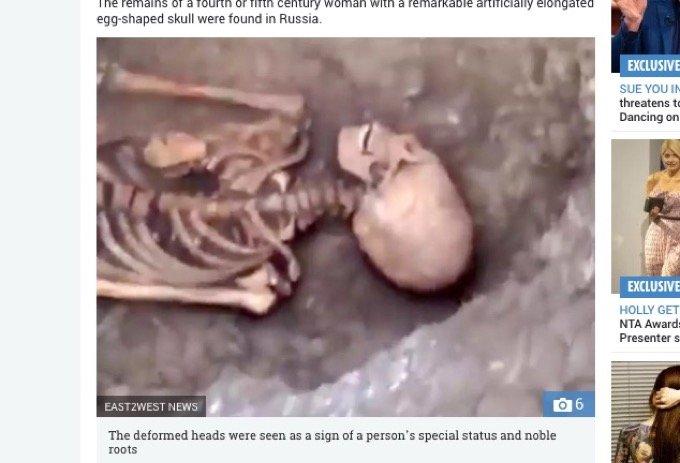 ロシアで正体不明「古代エイリアン女性」の骸骨が発見される! 謎の長頭、白すぎる歯… パラカスの頭蓋骨と関連か!?の画像1