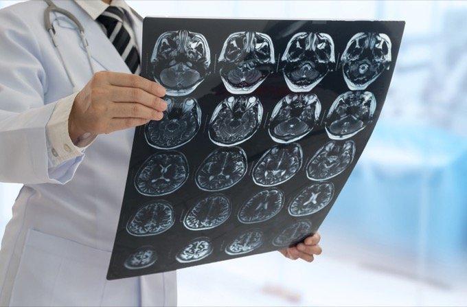 人間の魂を見つける「最強MRI開発計画」を中国が発表! 脳研究に革命「別世界が判明する」の画像1