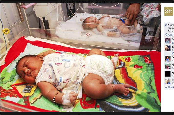 「産まれついてのデブ」インド最大の赤ちゃん誕生に角界入りを期待する声の画像1