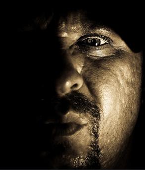 【閲覧注意】性格が奇形を凌駕する ― 鼻がなく皮膚もただれた人気者=ブラジルの画像1
