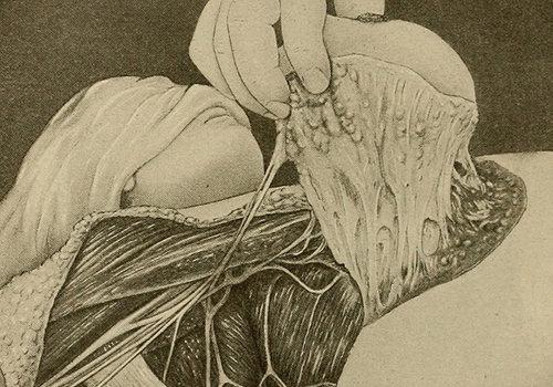 【超・閲覧注意】性的暴行の被害女性からDNAを採取する様子が絶望的…の画像1