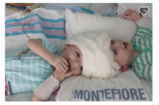 【閲覧注意・奇病】助かった結合双生児、助からなかった結合双生児/アナイアスとジェイドンの画像1