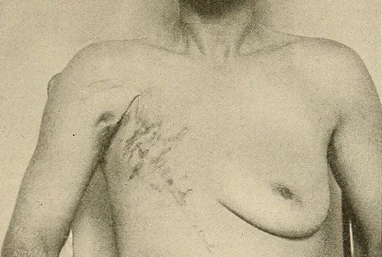1707_breastcancer_1.jpg