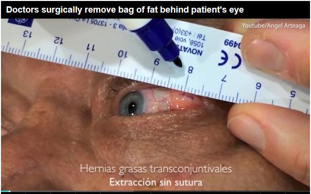 1709_eyeballsurgery_1.jpg
