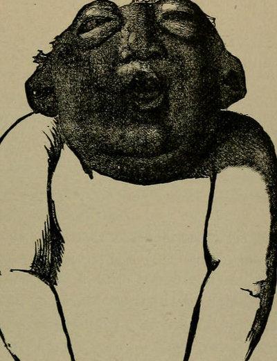 【閲覧注意】重度の「無脳症」を発症した赤ん坊の悲劇的すぎる姿! 頭蓋骨と頭皮も欠損、頭の中身が丸見え状態で何かを訴えている!?の画像1