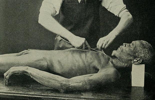 【超・閲覧注意】死体の人面福笑いも! 美しすぎるグロ死体画像10! 本当の闇美を見ろの画像1
