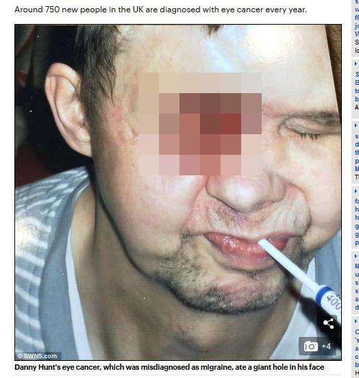 【閲覧注意】手術で顔面に大穴が空いた男! 恐ろしい姿に絶叫する孫娘、穴から流れる体液… 良きパパを襲った地獄の苦しみとは?の画像1