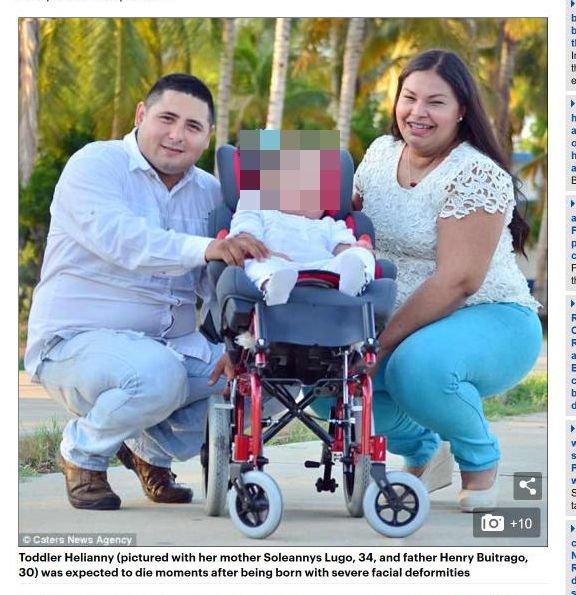 【閲覧注意】頭に王冠が埋め込まれた顔面奇形の赤ん坊! 誕生前から医師に見放され… 奇形児の出産責任が議論=ベネズエラの画像1