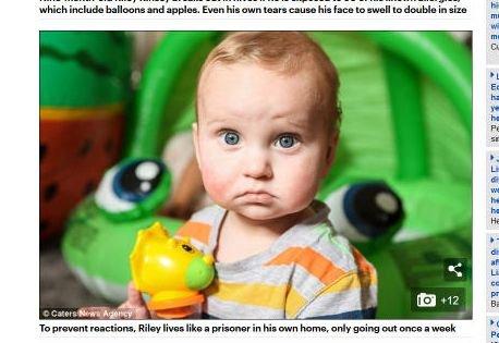 【閲覧注意】50のアレルギーに苦しむ赤ん坊が痛々しすぎる! 涙を流すだけで顔が2倍に… 自宅隔離の日々と両親の愛の画像1