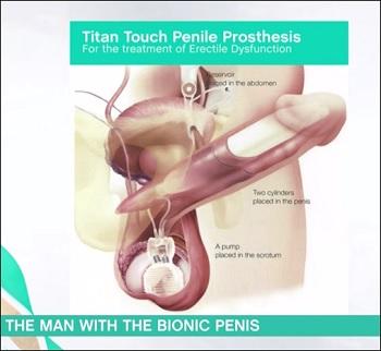 BionicPenis.jpg