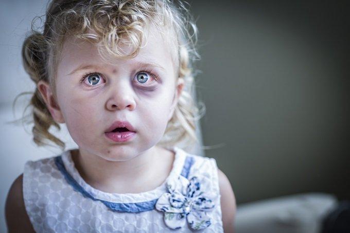 【閲覧注意】米史上最悪「悪魔のような幼児虐待事件」全貌! 膣・肛門を指で裂き腸破裂、全力放り投げ… 鬼畜夫婦!の画像1