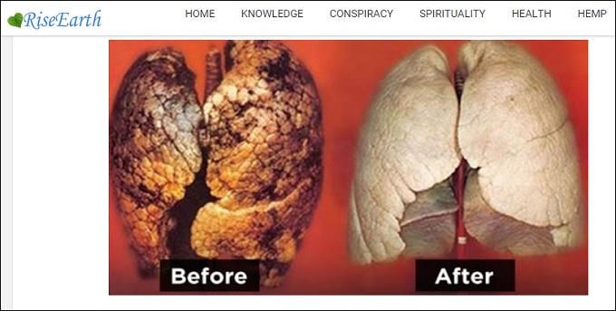 は 肺 タバコ たら なる やめ きれいに