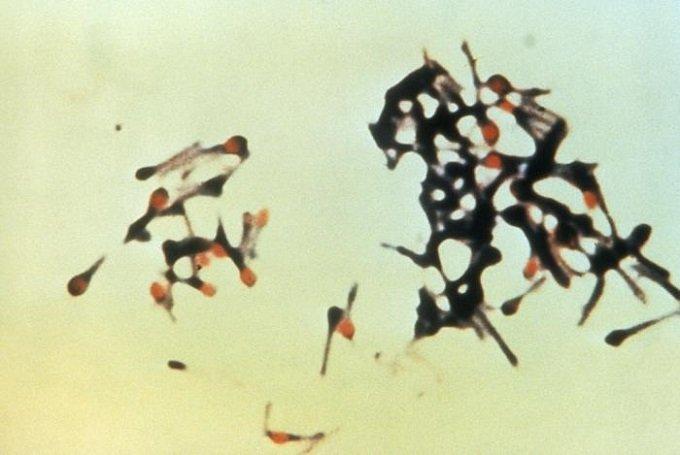 Clostridiumtetani.jpg