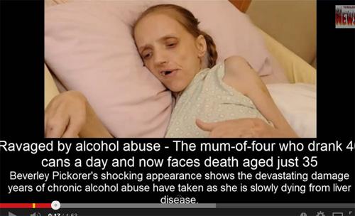 飲酒で老人になった35歳の女性 恐怖のアルコール依存症の画像1