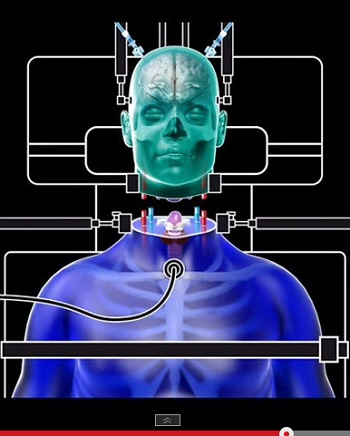 【生命倫理学】あなたはどう考える? 世界初の「頭部移植手術」実施へ!!の画像1