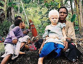 albino0414.jpg