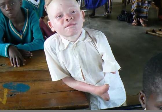 albinobodyparts1.JPG
