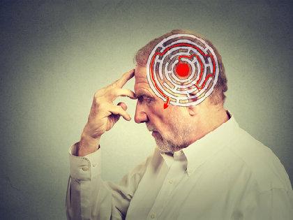 なぜアルツハイマー病の新薬開発は失速するのか?新薬の臨床試験が相次いで失敗の画像1