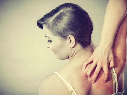 アトピー性皮膚炎に心理療法を! 患者の話を聞くだけで完治したケースもの画像1