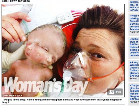 150年間で16件の顔面重複奇形、2つの顔が繋がった奇跡の赤ちゃん誕生の画像1