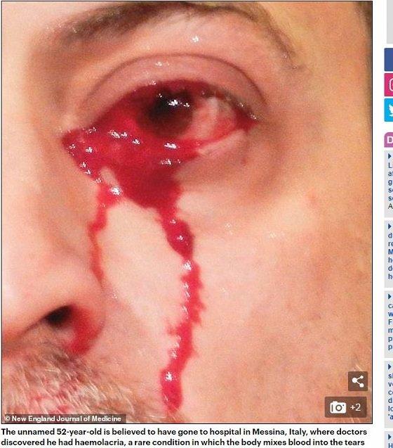 bleedingfromeyes1.JPG