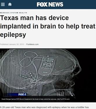 brainimplants1.JPG