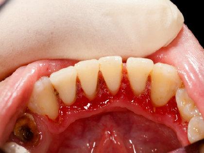 歯周病もアルツハイマー病の原因に! 真犯人「酪酸」が「脳」を侵食する?の画像1