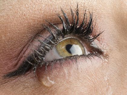 乾燥するのに涙目になる、冬場のドライアイの原因、治療法は?の画像1