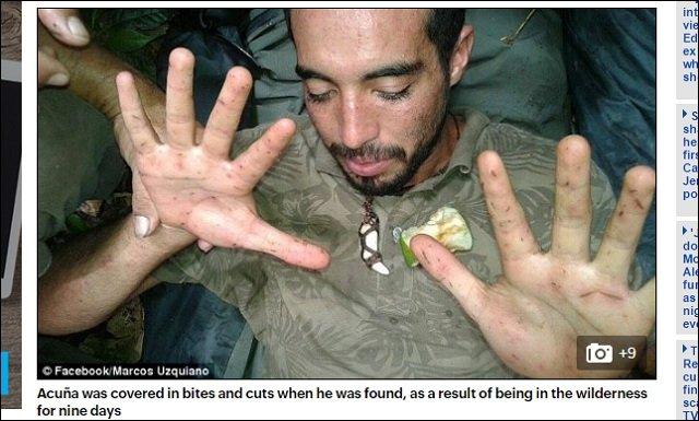 【ガチ】アマゾンで精霊に拉致された不明男性、9日目にサルの介抱で救出される!=ボリビアの画像3