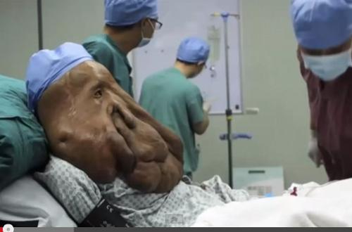 現実に生きるエレファントマン  顔に17.5キロの腫瘍を持つ男、記録的に深刻なケースの画像2
