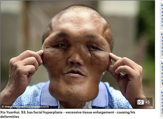 facialhyperplasia1.JPG