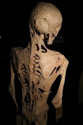 fibrodysplasia1.JPG