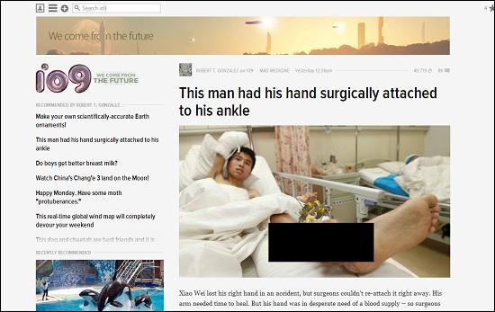 切断された手を、足首に縫合して温存 中国で行われた驚異の手術とは?の画像1